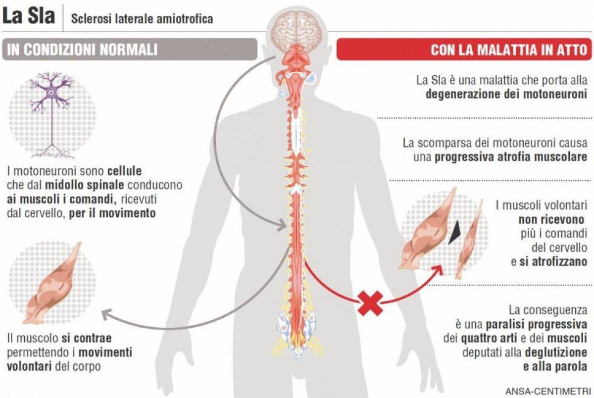 SLA Sclerosi Laterale Amiotrofica